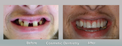 Carroll Dentistry, Cosmetic Dentistry, Miami Beach Dentist, Tooth Whitening, Family Dentistry, Bioclear, Bonding