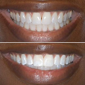 Carroll Dentistry, Cosmetic Dentistry, Miami Beach Dentist, Tooth Whitening, Family Dentistry, Bioclear, Bonding,