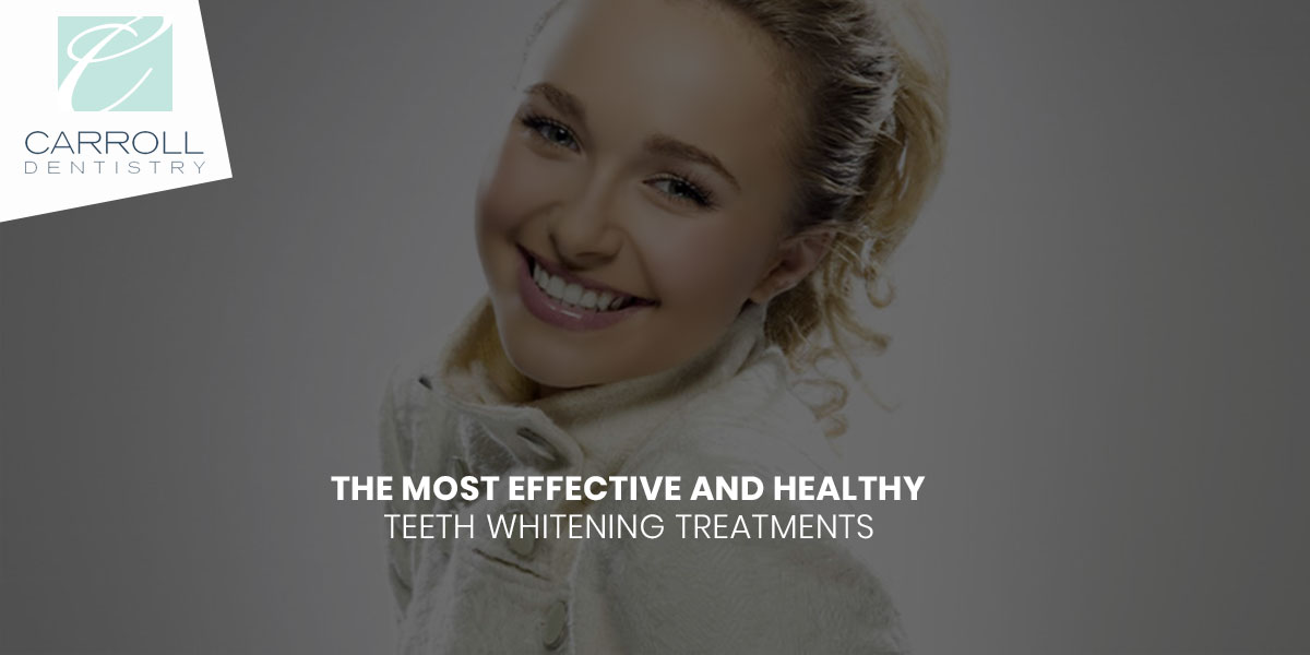 The Most Effective And Healthy Teeth Whitening Treatments