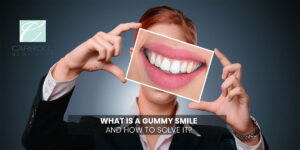 What Is a Gummy Smile And How To Solve It?