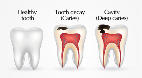 tooth decay caries and cavity