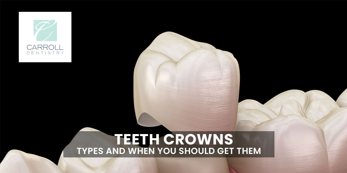 Teeth Crowns – Types and When you Should Get Them