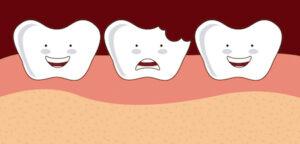 Tooth Breaks