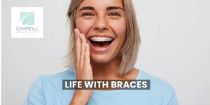 Read more about the article Life With Braces