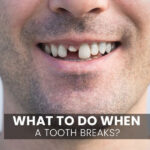 What To Do When a Tooth Breaks?