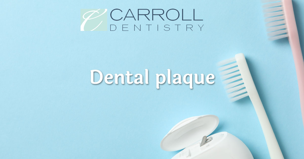 Read more about the article Dental Plaque